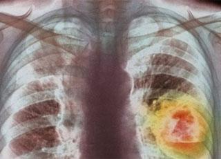 Có thể kéo dài gấp đôi cuộc sống bệnh nhân ung thư phổi