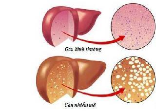 Phòng bệnh gan nhiễm mỡ